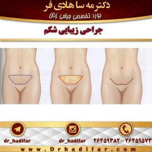 جراحی-زیبایی-شکم