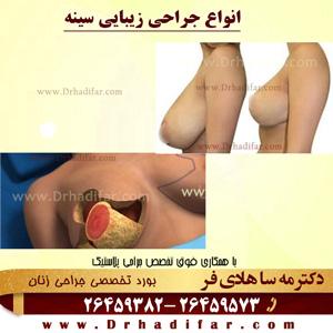 انواع-جراحی-زیبایی-سینه